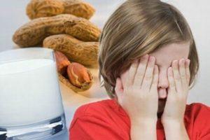 Allergie-alimentari-nei-bambini-i-sintomi-e-gli-alimenti-più-a-rischio