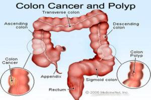 kolon-kanseri