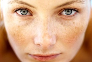 allergiya-na-lice-2