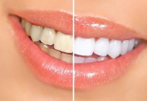 prirodno_izbjeljivanje_zuba-620x425