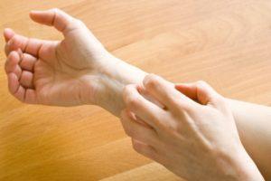 remedios-caseiros-para-alergias-na-pele