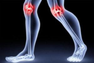 artrit-kolena-2